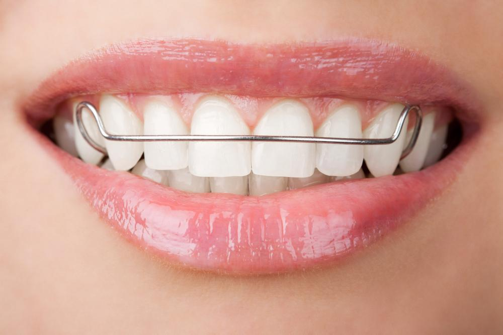 Ортодонтия фото